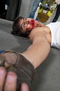 Bloodied Man